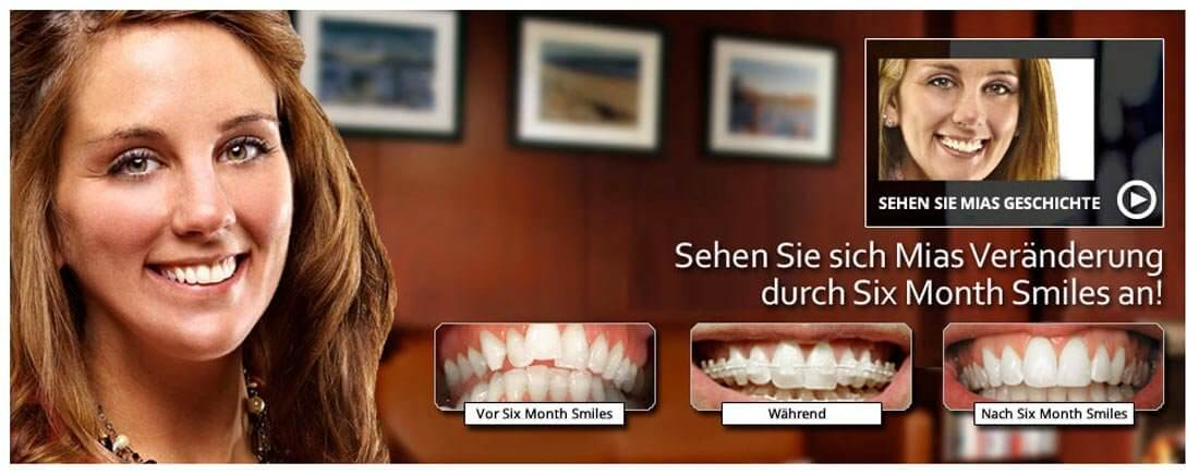 Six Month Smiles. Bild: Screenshot Webseite Six Month Smiles