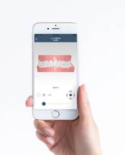 Die PlusDental-App auf einem Smartphone erinnert Nutzer an den bevorstehenden Wechsel der unsichtbaren Zahnschiene