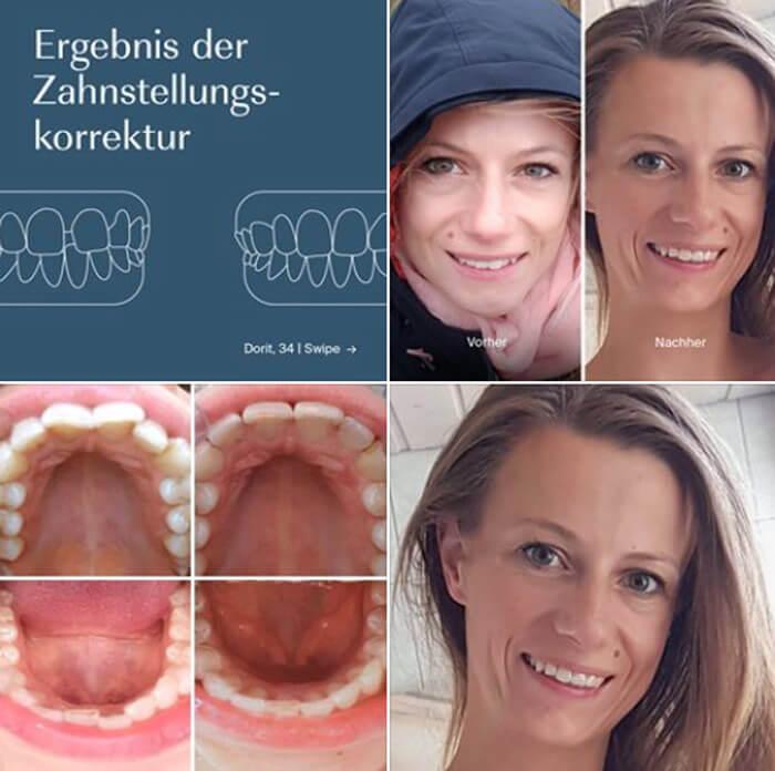 Vorher-Nachher-Bilder zu von PlusDental korrigierten Zahnfehlstellungen