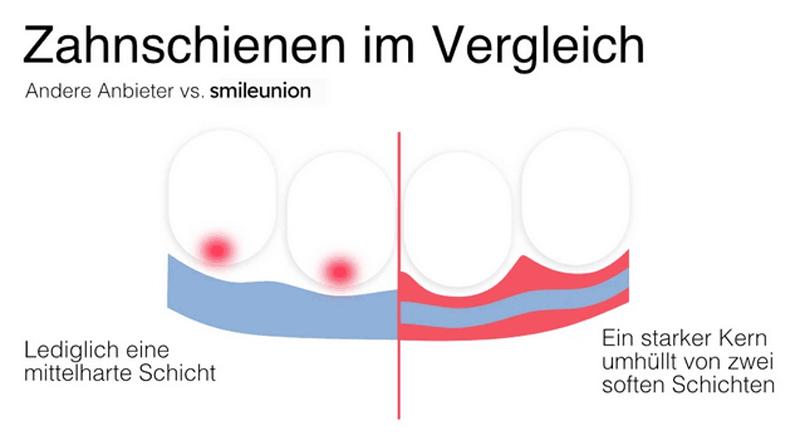 Grafik mit Vergleich von Zahnschienen von smileunion vs. andere Anbieter